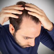 Anxiety and Hair Loss