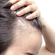 What Are Popular Hair Loss Remedies You Should Know?