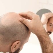 How Difficult Is It To Fix Hair Loss In The Modern Age?